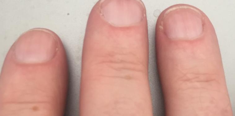 FOB Finger